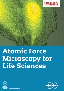 AFM (life sciences)